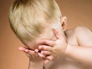 Бактериальный конъюнктивит у детей: лечение
