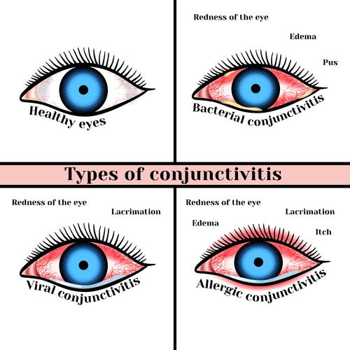 Конъюнктивит глаз при беременности, чем лечить?