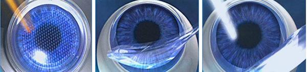 Лечение катаракты лазером: фемтолазерная хирургия против экстракапсулярной экстракции