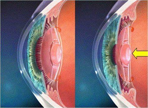 Искусственный хрусталик глаза - срок службы, виды искусственных хрусталиков, их преимущества и недостатки