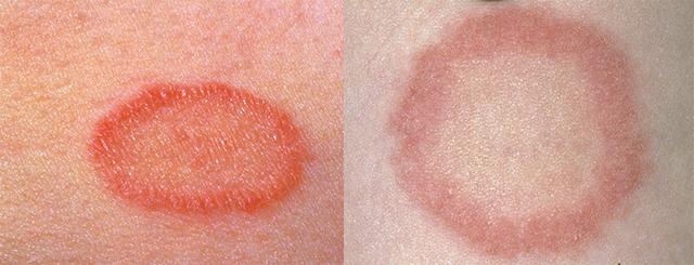 Комар укусил в веко - как снять отек глаза, когда опухло