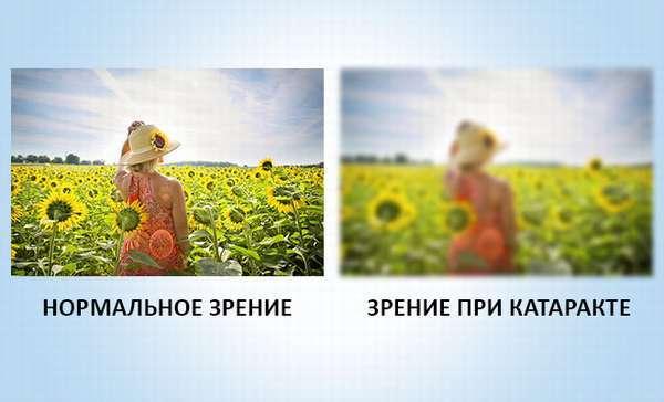 Профилактика катаракты глаз, как предотвратить катаракту народными средствами