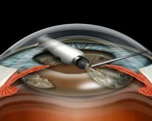 Какой лучше хрусталик ставить при катаракте во время операции