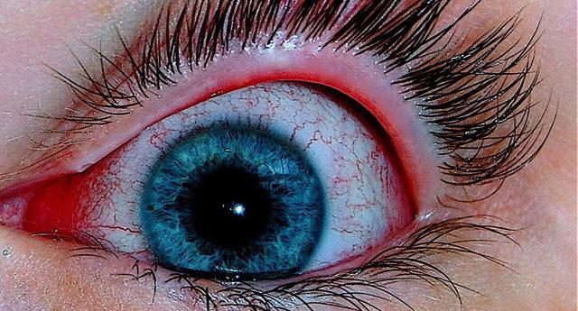 Как передается конъюнктивит, он заразен или нет?