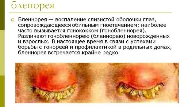 Воспалился глаз у ребенка, чем и как лечить воспаление глаза, капли для лечения