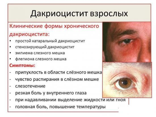 Воспаление глаза, чем лечить и что делать если воспалился глаз
