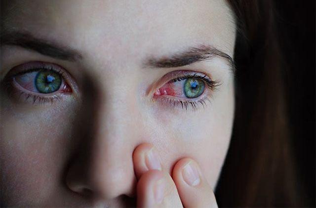 Око плюс капли для глаз: отзывы, состав препарата, инструкция