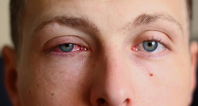 Хронический конъюнктивит глаз: лечение и симптомы у взрослых