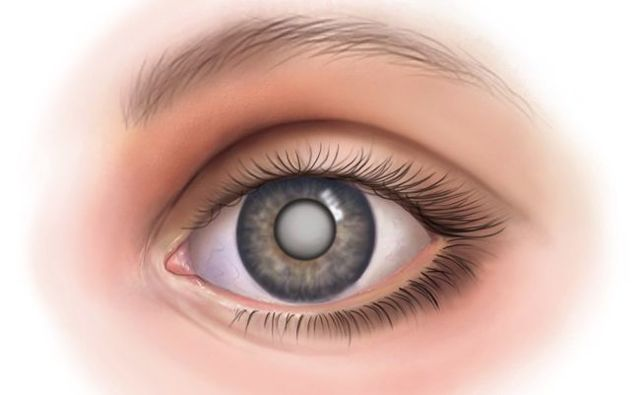 Сколько длится операция катаракты по времени?
