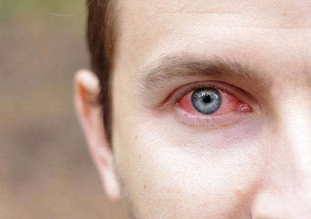 Глазное давление симптомы и лечение, норма внутриглазного давления