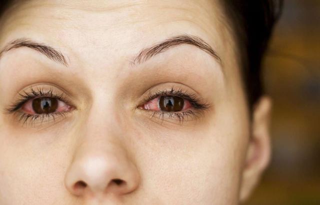 Воспалился глаз, чем лечить в домашних условиях народными средствами