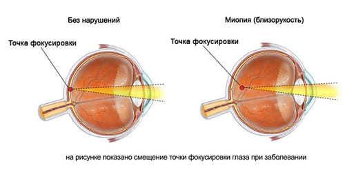 Близорукость - это миопия, что это такое? Причины, симптомы и лечение без операции