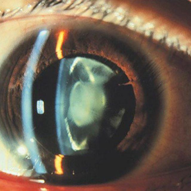 Ядерная катаракта глаз у пожилых, что это такое?