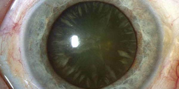 Начинающая катаракта: капли при начальной стадии катаракты, лечение