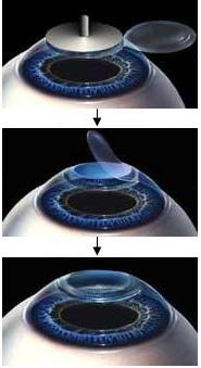 Лазерная коррекция зрения: плюсы и минусы операции по восстановлению