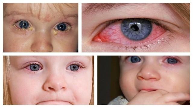 Гнойный коньюктивит глаз: лечение у детей, чем лечить у ребенка?