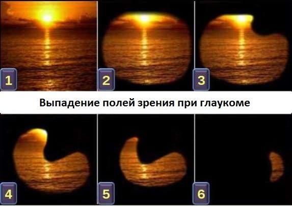 Угол зрения человека: определение полей зрения в градусах