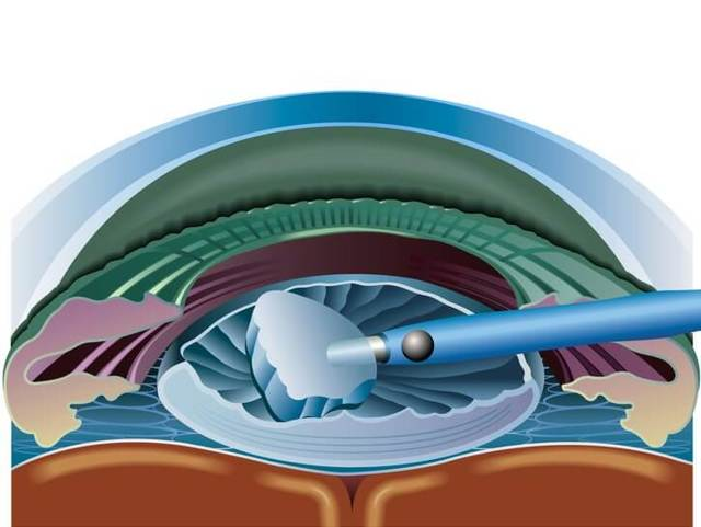 Факоэмульсификация катаракты с имплантацией ИОЛ - что это такое? Осложнения после операции