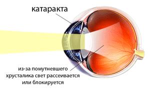 Лечение катаракты глаз: оперативное, витамины, консервативное, упражнения