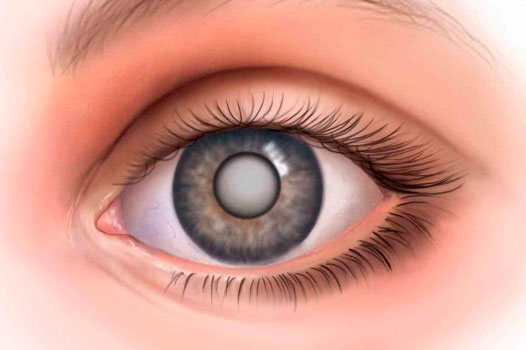 Рецепт лечения катаракты медом и прополисом