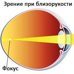 Как улучшить зрение при близорукости в домашних условиях народными средствами?