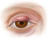 Почему болит верхнее и нижнее веко глаза - причины боли век обоих глаз