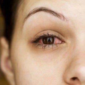 Лопнул сосуд в глазу, что делать и чем лечить если лопнули капилляры и весь глаз красный