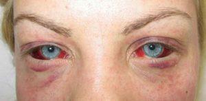 Аденовирусный конъюнктивит: симптомы и лечение у взрослых